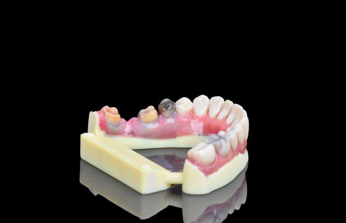 Stratasys J720 teeth model